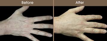 Treatment for the ageing hand!..