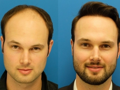 A Guide To Hair Transplant: Co..