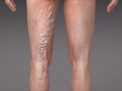 How do you treat veins on your..