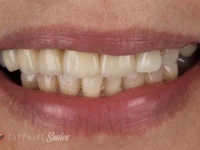 The Benefits Of Dental Teeth C..