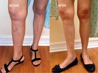 How does Sclerotherapy work fo..